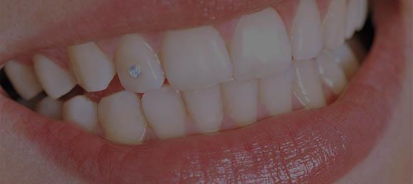get a tooth gem bend oregon